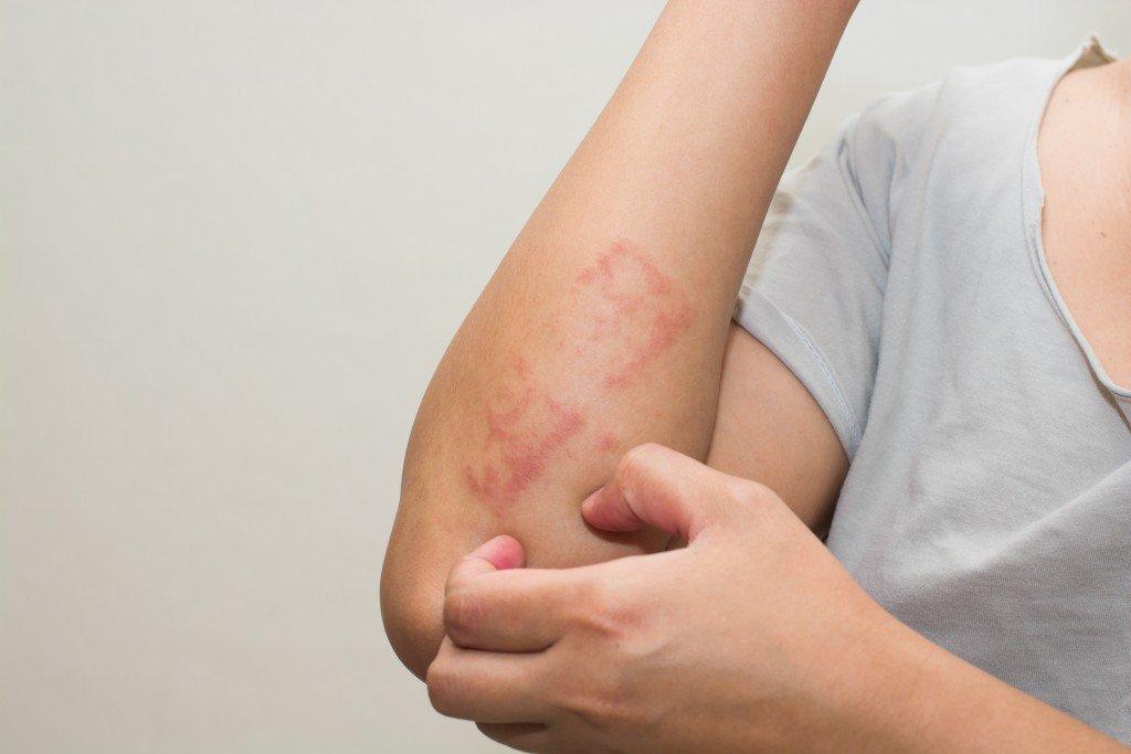 Eczema on a woman's arm